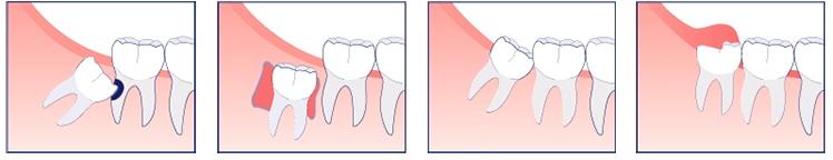 bến chứng răng khôn mọc lệch