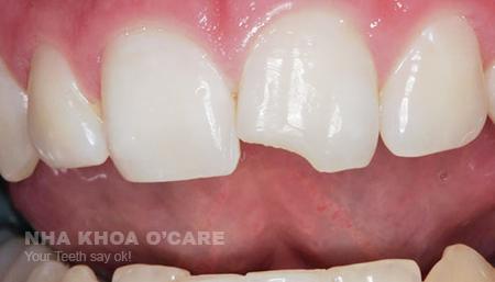 răng sứt mẻ