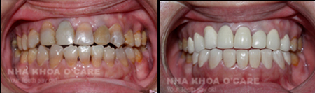 răng nhiễm mầu