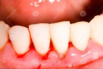 Kết quả hình ảnh cho bệnh răng miệng