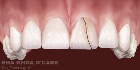 nứt gãy chân răng