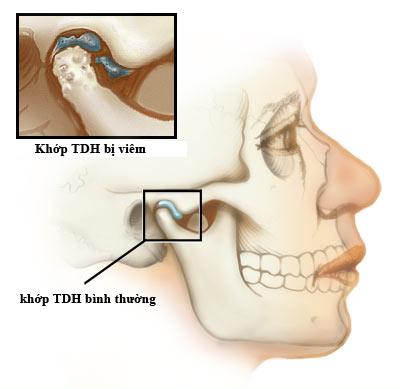 đau quai hàm, viêm khớp thái dương hàm