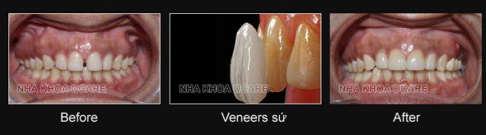 bọc sứ răng thưa