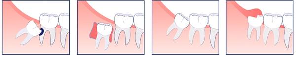 Tìm hiểu về răng số 8 (răng khôn)