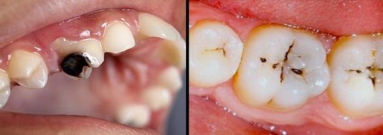 răng sâu khi nào cần nhổ
