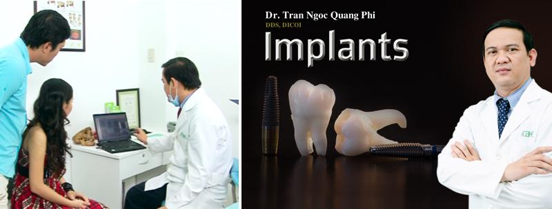 trồng răng giả vĩnh viễn Implant
