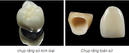 bọc răng sứ02