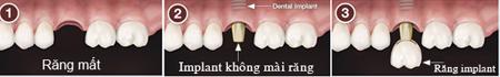Làm răng giả bằng phương pháp cấy ghép implant