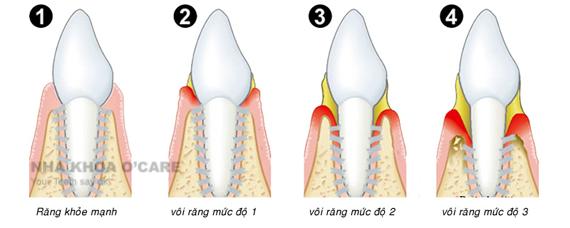 Cạo vôi răng 1