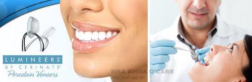 Dán răng sứ Lumineers thẩm mỹ01