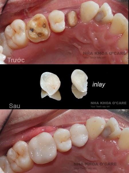 trám răng inlay, onlay
