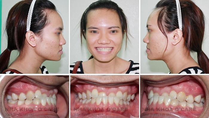 Quy trình niềng răng tại nha khoa3