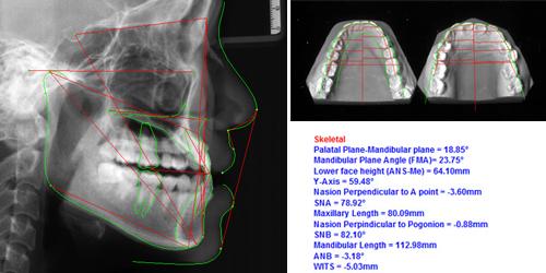 Quy trình niềng răng tại nha khoa4