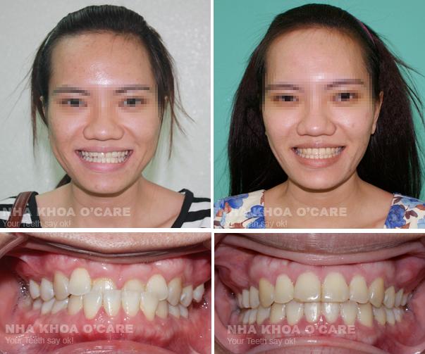 Quy trình niềng răng tại nha khoa6