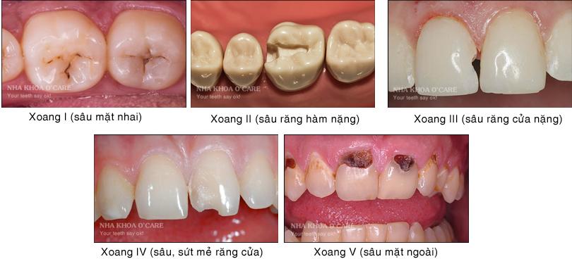 xoang răng là gì