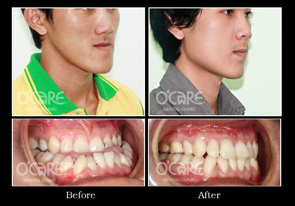 trước và sau phẫu thuật hàm hô