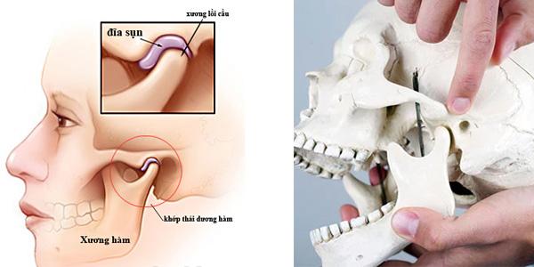 Image result for đau khớp thái dương hàm