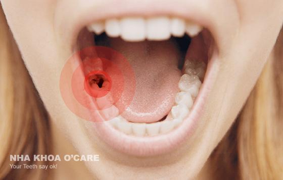 đau răng sâu